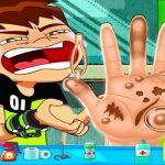 Ben10 Hand Doctor – Free Online Game